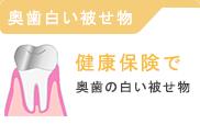 奥歯の白い被せ物